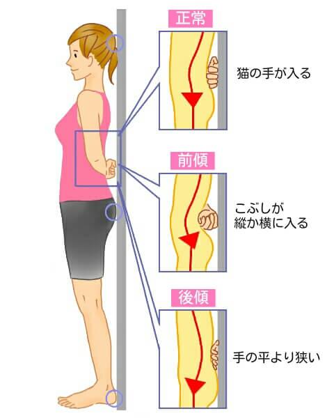 前後の傾きズレチェック図 骨盤 腰痛