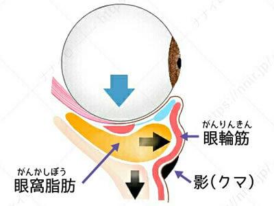 目元のむくみにも効く筋トレ 目の下 くま たるみ