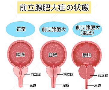 前立腺肥大症の状態 エクオール 男性