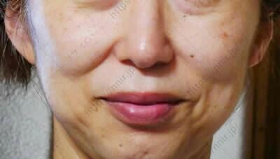 使用前の顔全体 セシュレル 口コミ