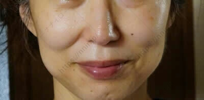 使用後の顔全体 セシュレル 口コミ