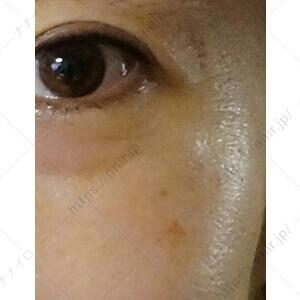 使用後の左目元 セシュレル 口コミ